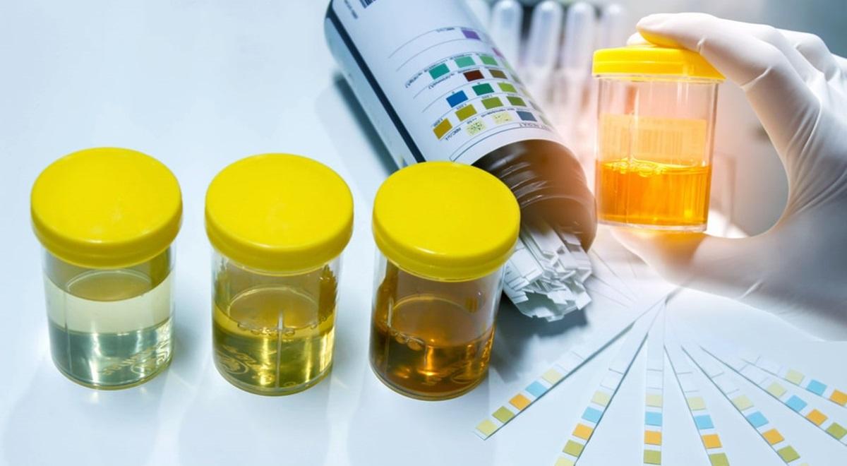 Les vertus insoupçonnées de l'urine